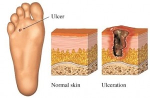 DIABETIC-FOOT-ULCERATION