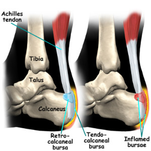 foot_achilles_tendon_anatomy03