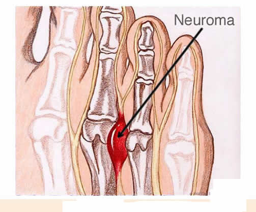 What Are The Best Shoes For Morton S Neuroma